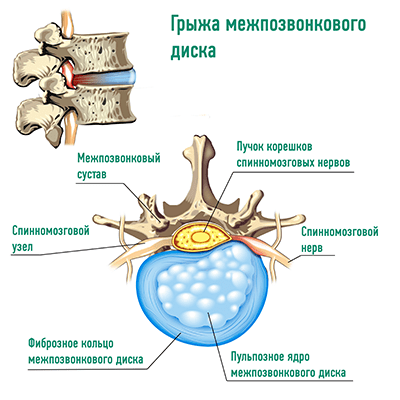 Protrusion and hernia of the intervertebral disc: what is the difference. Diagnosis and treatment methods
