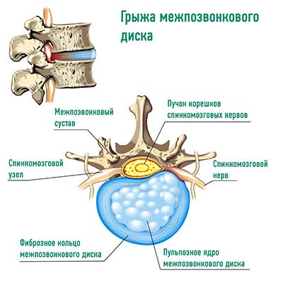 Протрузии и грыжи межпозвонковых дисков : в чем разница. Диагностика и методы лечения