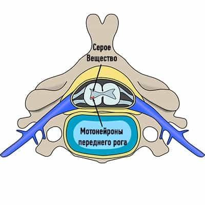Спинальная мышечная атрофия